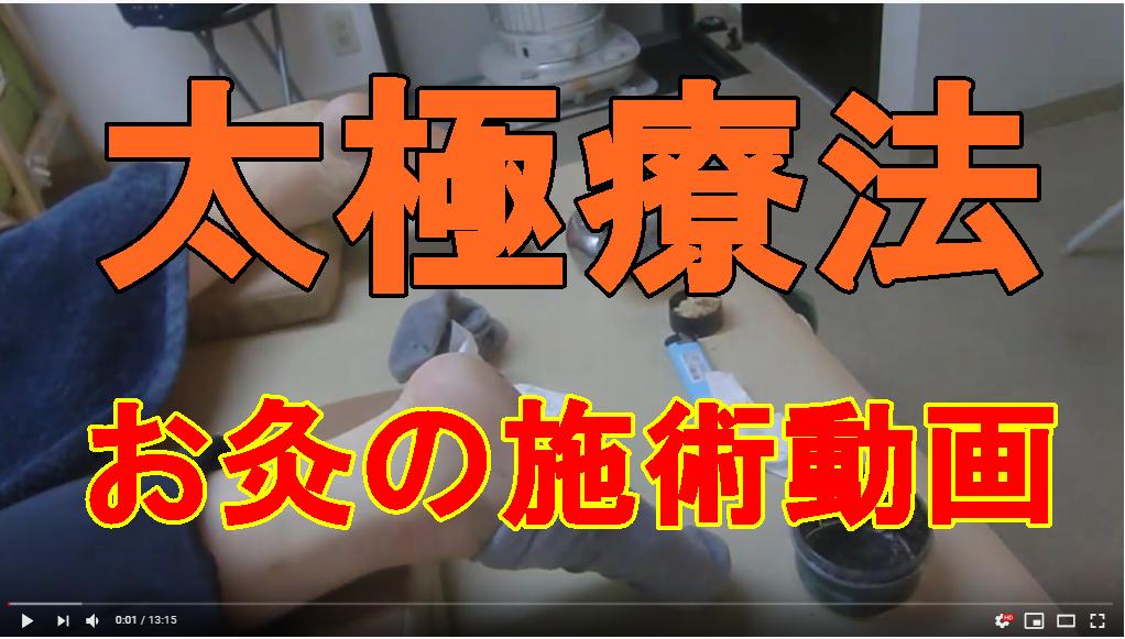 お灸の太極療法の施術動画