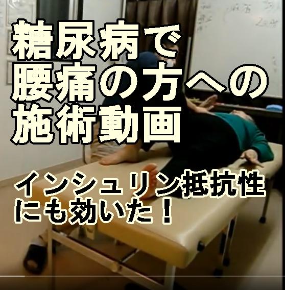 腰痛で糖尿病の方への施術風景【兵庫県尼崎鍼灸整体】