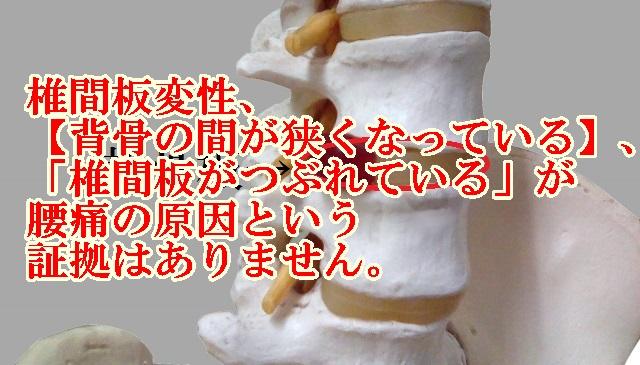 尼崎・腰痛ー椎間板変性、「背骨の間が狭くなっている」、「椎間板がつぶれている」が腰痛の原因という証拠はありません!